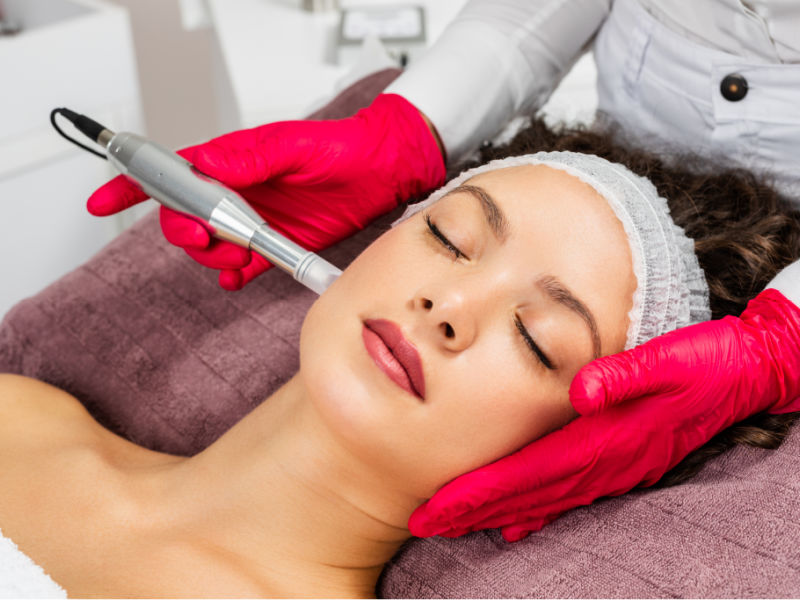 Microneedling Peterborough